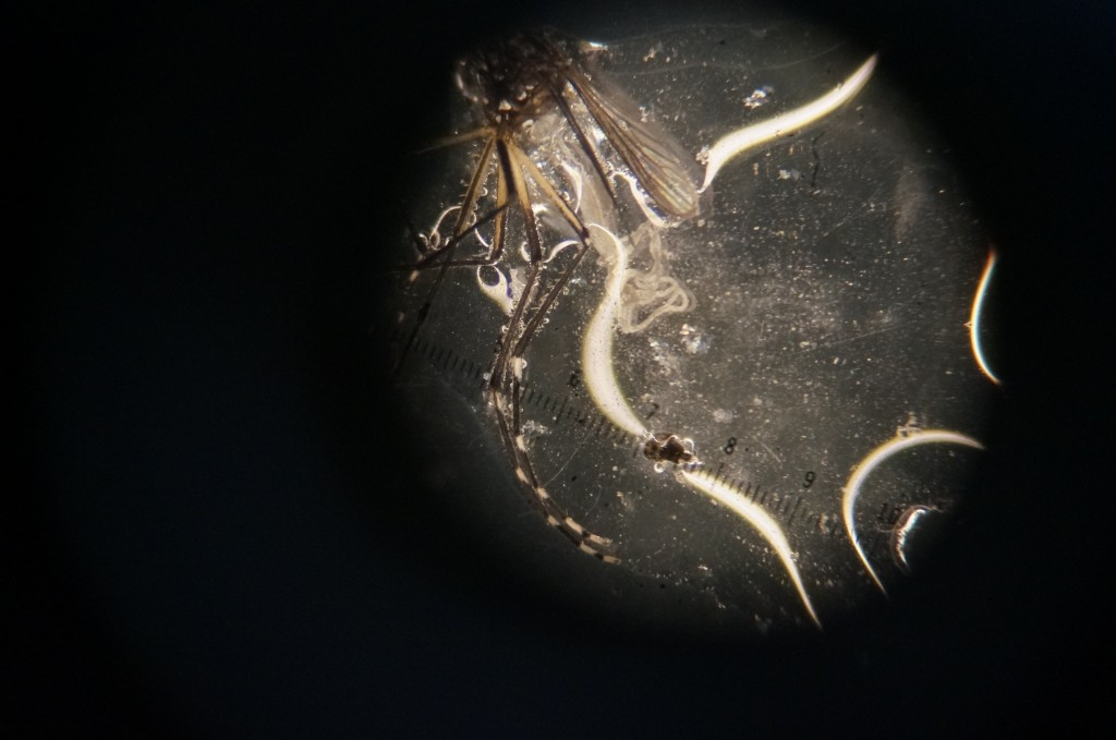 Successful dissection! The female mosquito is headless, and its midgut is exposed.